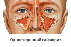 Гайморит у взрослого лечение