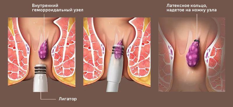Лечение геморроя круглосуточно в москве