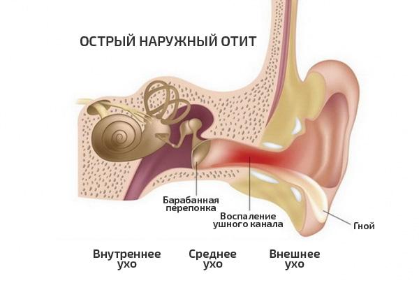 Отит симптомы и лечение