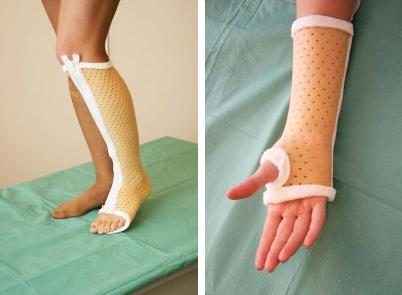 Повязка локтевого сустава в гипсе болят коленный и локтевой сустав