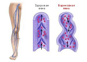 Флебологи в ангарске