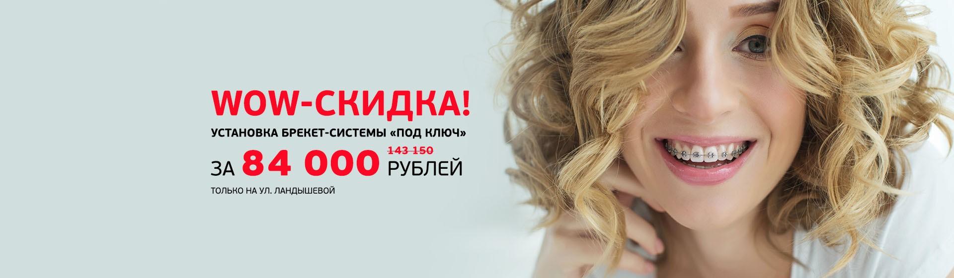 Брекет-система «под ключ» за 84 000 рублей